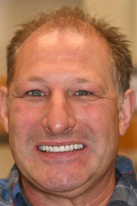 Case 1 After - Ponderosa Dental Center - Bend, OR