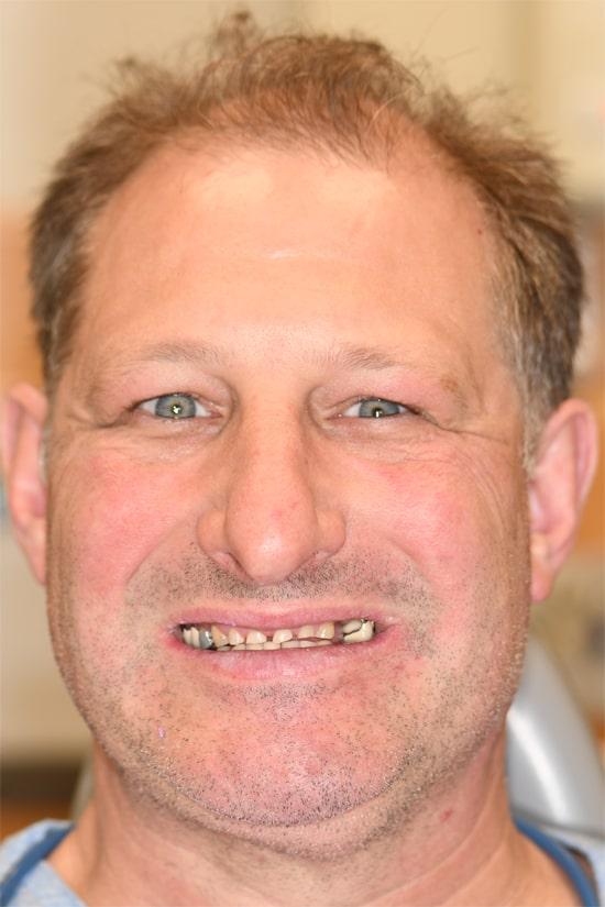 Case 1 before - Ponderosa Dental Center - Bend, OR