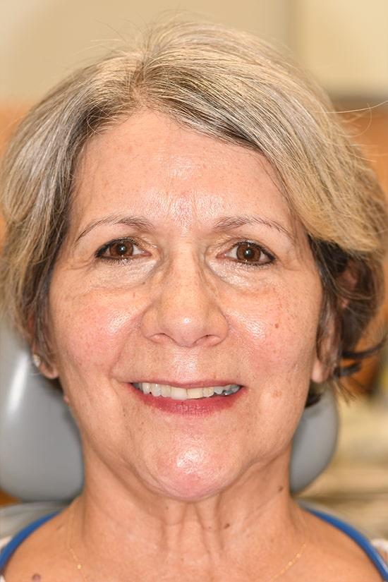 Case 7 before - Ponderosa Dental Center - Bend, OR