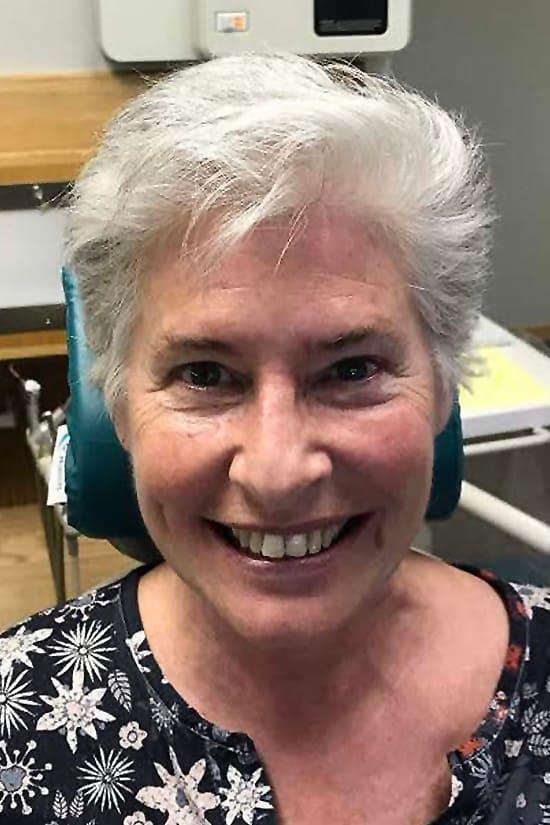 Case 9 before - Ponderosa Dental Center - Bend, OR